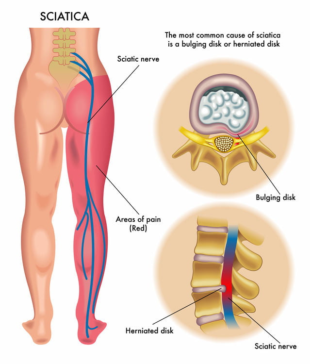 sciatica diagram for pain